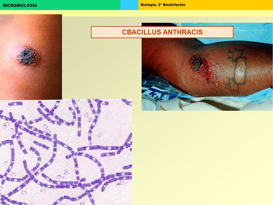 Biología. 2º Bachillerato MICROBIOLOGÍA CBACILLUS ANTHRACIS