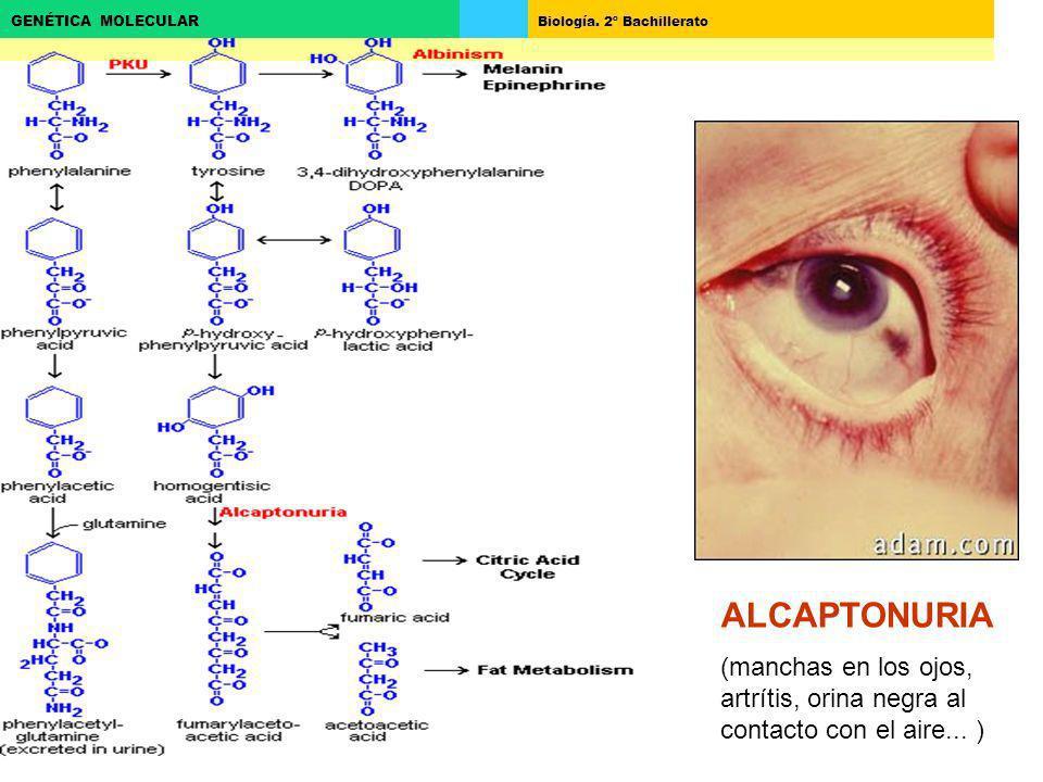 Biología. 2º Bachillerato GENÉTICA MOLECULAR ALCAPTONURIA (manchas en los ojos, artrítis, orina negra al contacto con el aire... )