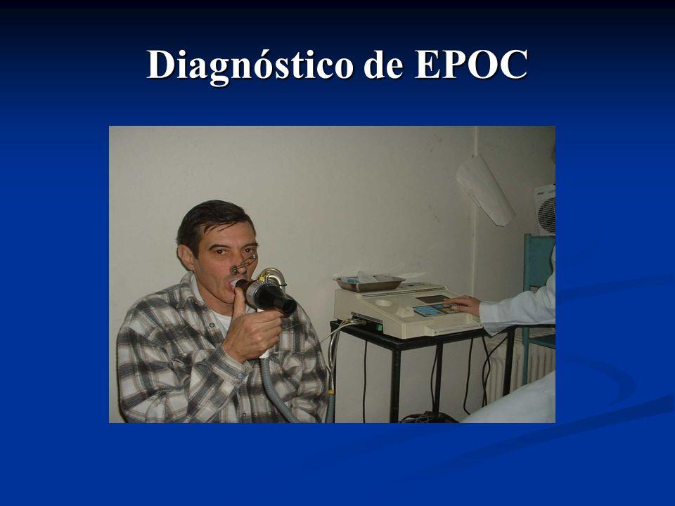 Diagnóstico de EPOC
