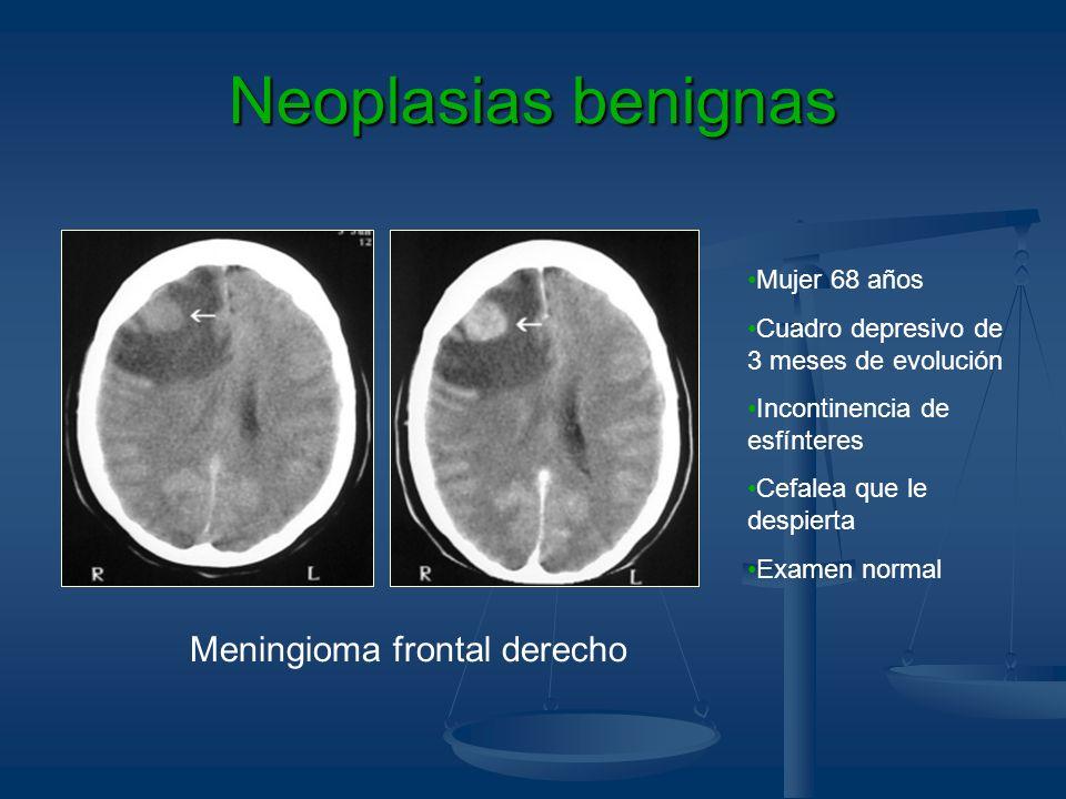 Neoplasias benignas Meningioma frontal derecho Mujer 68 años Cuadro depresivo de 3 meses de evolución Incontinencia de esfínteres Cefalea que le despi