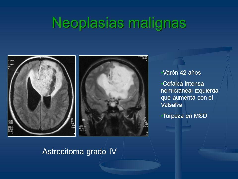 Neoplasias malignas Astrocitoma grado IV Varón 42 años Cefalea intensa hemicraneal izquierda que aumenta con el Valsalva Torpeza en MSD