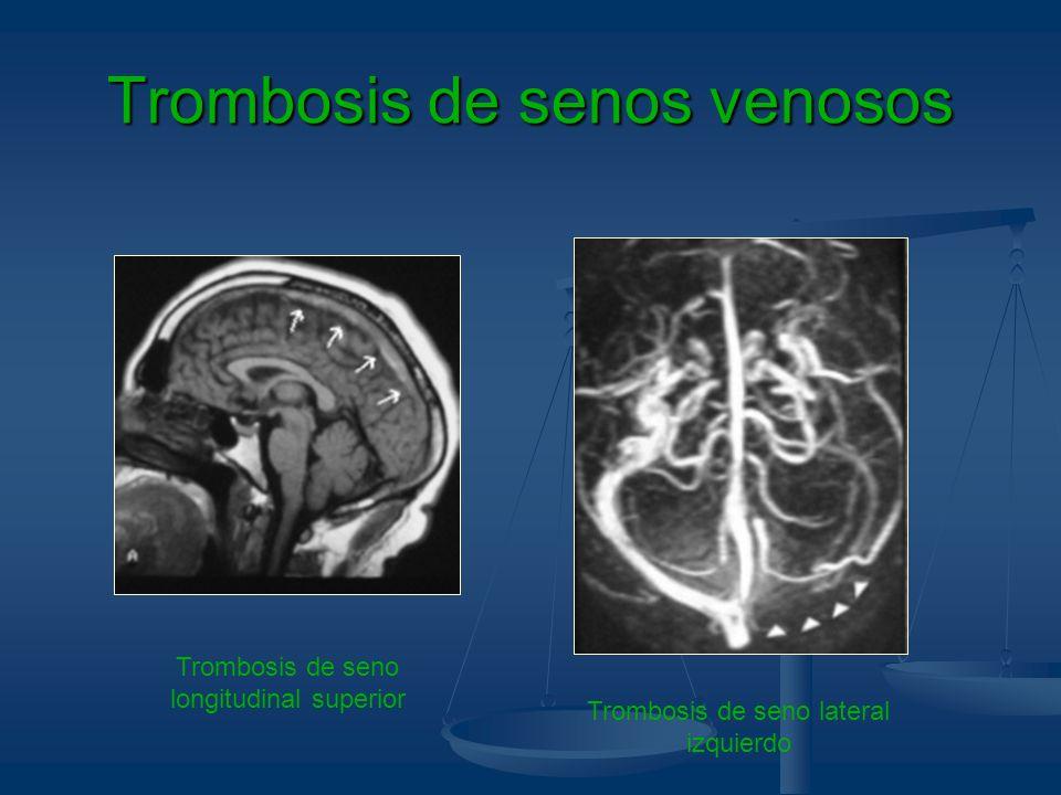 Trombosis de senos venosos Trombosis de seno longitudinal superior Trombosis de seno lateral izquierdo