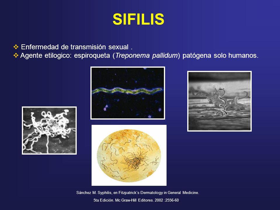 SIFILIS Enfermedad de transmisión sexual. Agente etilogico: espiroqueta (Treponema pallidum) patógena solo humanos. Sánchez M. Syphilis, en Fitzpatric