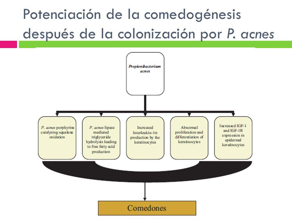Potenciación de la comedogénesis después de la colonización por P. acnes