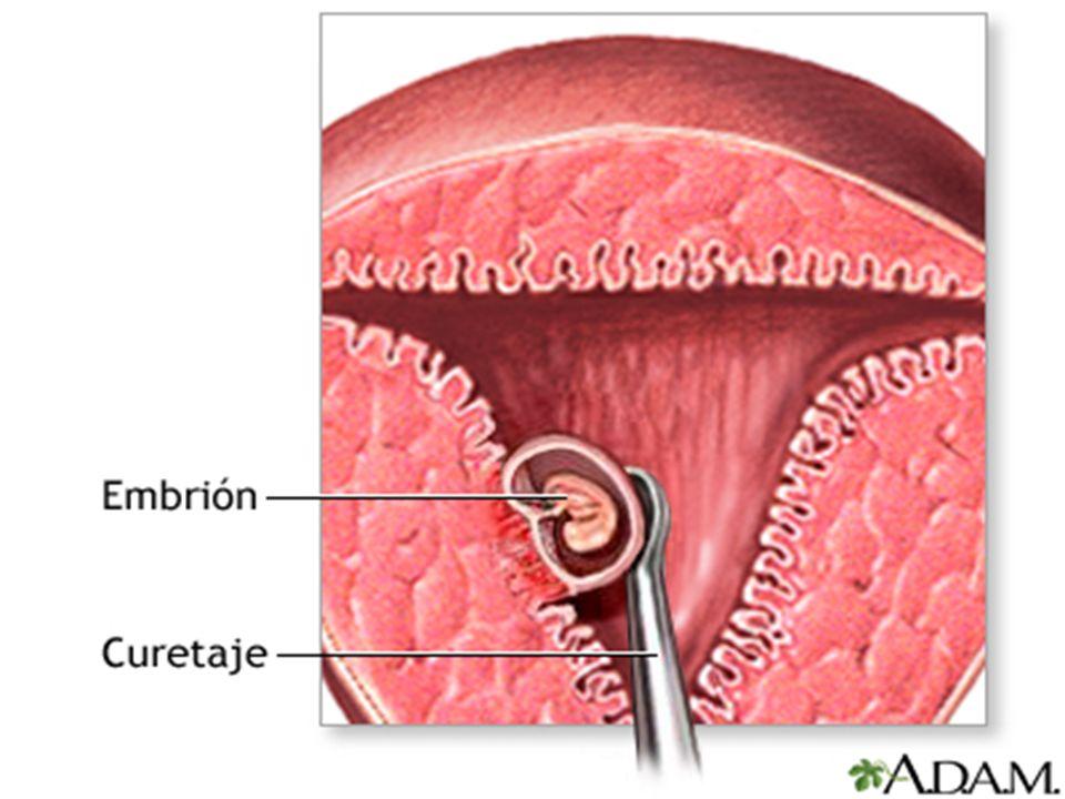 4) Aborto por dilatación y legrado