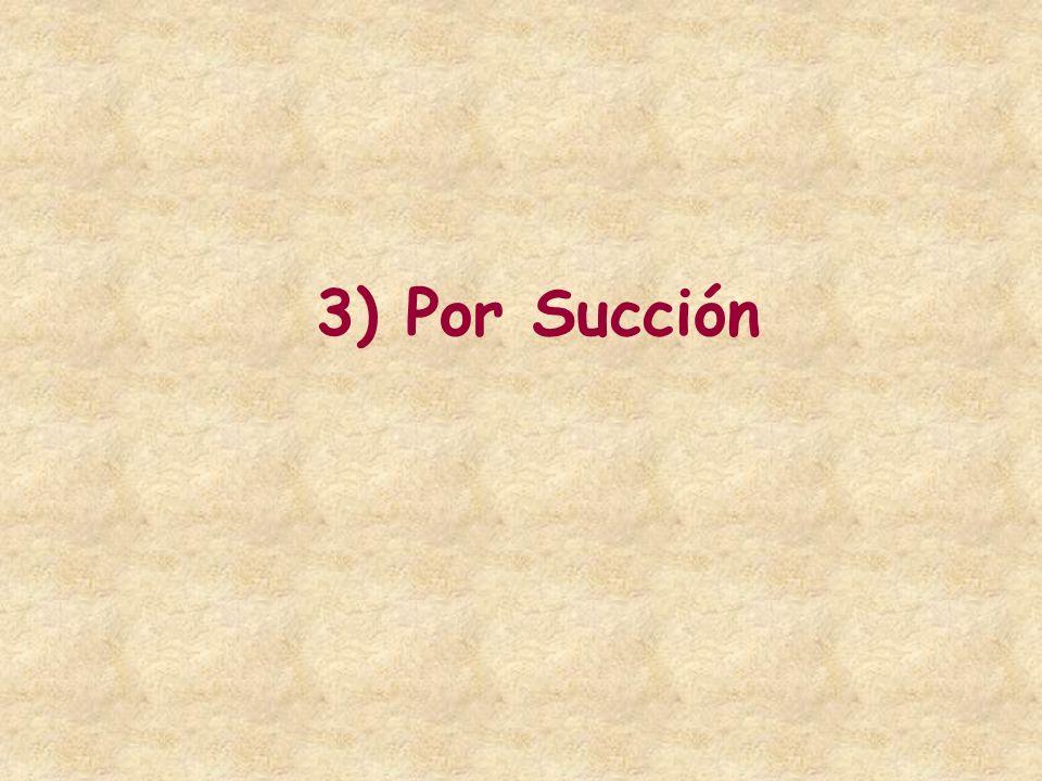 3) Por Succión