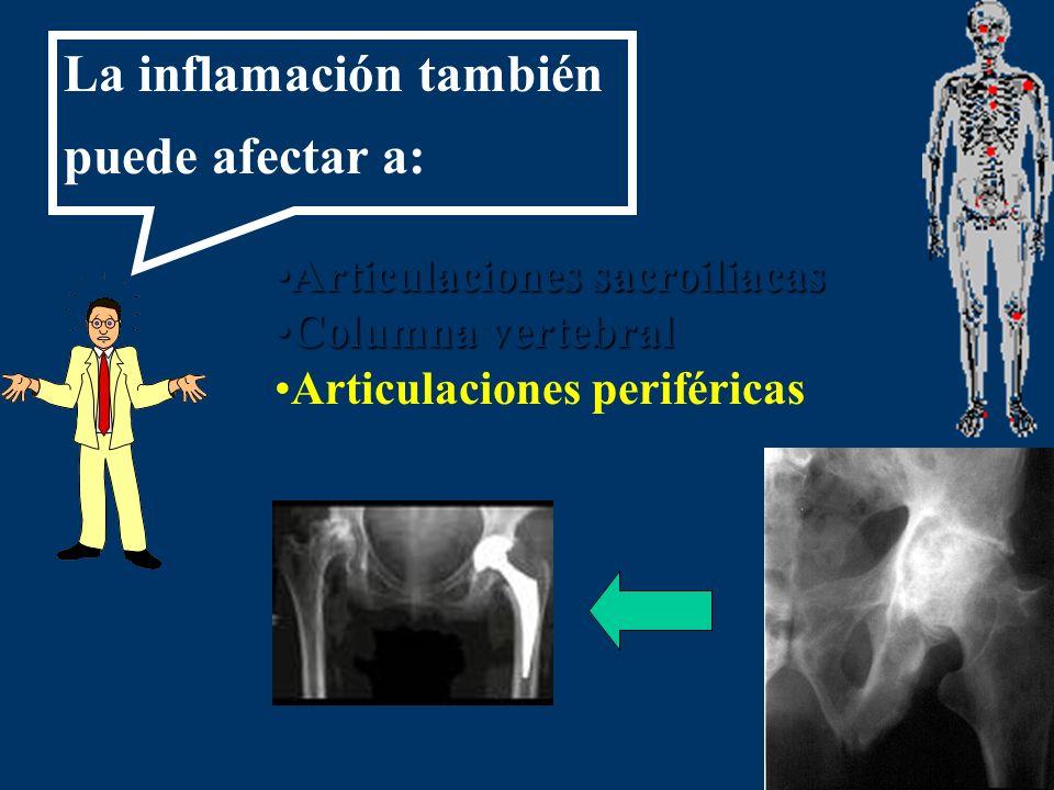 Articulaciones sacroiliacasArticulaciones sacroiliacas Columna vertebralColumna vertebral Articulaciones periféricas La inflamación también puede afec