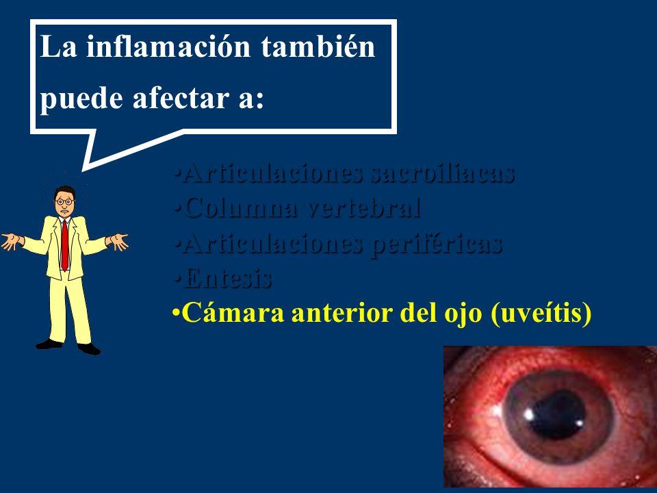 Articulaciones sacroiliacasArticulaciones sacroiliacas Columna vertebralColumna vertebral Articulaciones periféricasArticulaciones periféricas Entesis