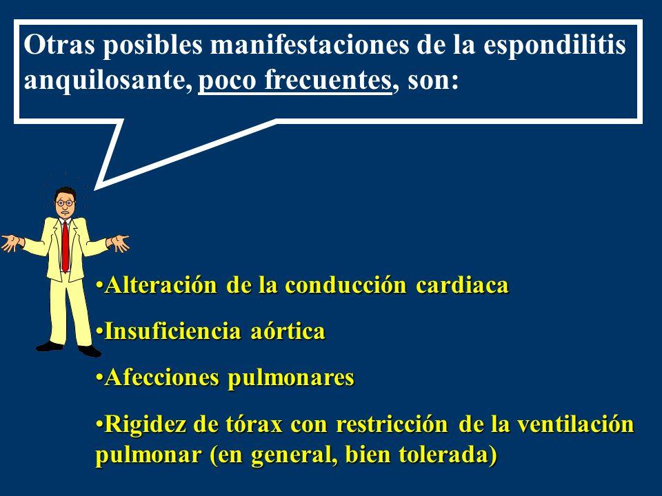 Otras posibles manifestaciones de la espondilitis anquilosante, poco frecuentes, son: Alteración de la conducción cardiacaAlteración de la conducción