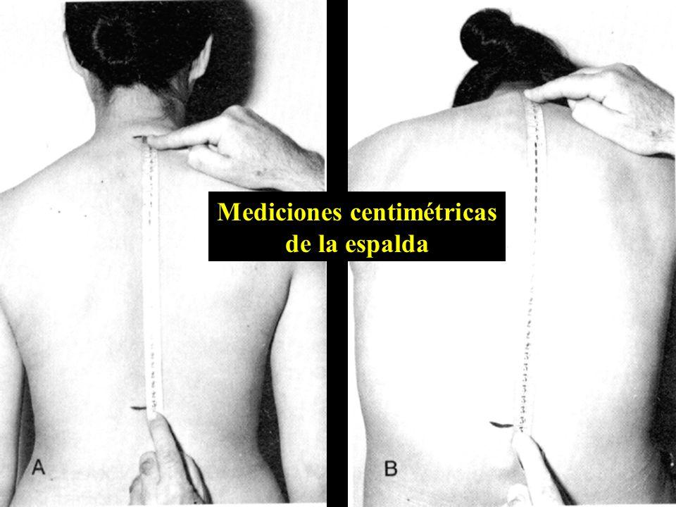 Mediciones centimétricas de la espalda