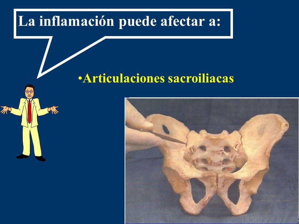 Articulaciones sacroiliacas
