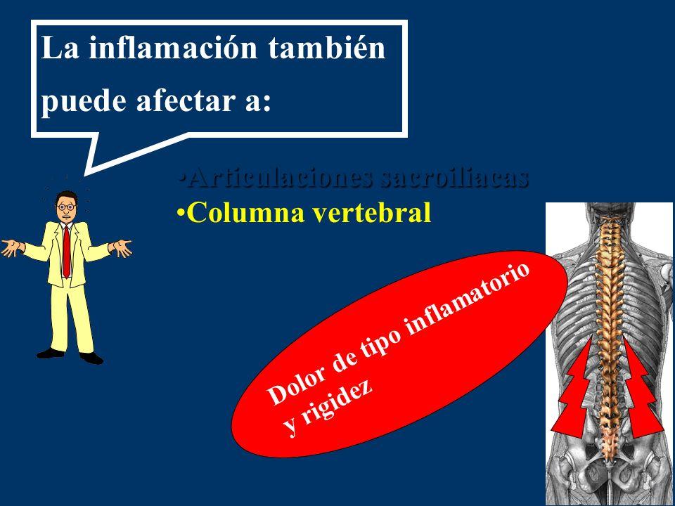 Articulaciones sacroiliacasArticulaciones sacroiliacas Columna vertebral Dolor de tipo inflamatorio y rigidez La inflamación también puede afectar a: