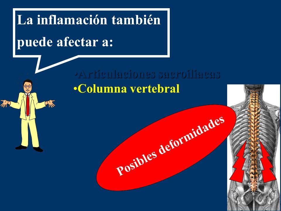 Articulaciones sacroiliacasArticulaciones sacroiliacas Columna vertebral Posibles deformidades La inflamación también puede afectar a: