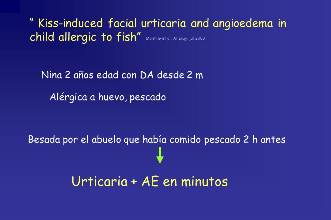 Kiss-induced facial urticaria and angioedema in child allergic to fish Monti G et al; Allergy, jul 2003 Nina 2 años edad con DA desde 2 m Besada por e