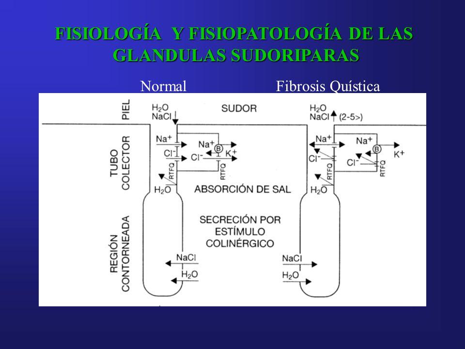 FISIOLOGÍA Y FISIOPATOLOGÍA DE LAS GLANDULAS SUDORIPARAS NormalFibrosis Quística