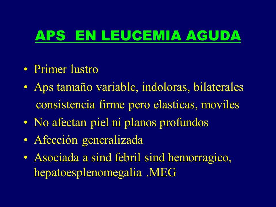 APS EN LEUCEMIA AGUDA Primer lustro Aps tamaño variable, indoloras, bilaterales consistencia firme pero elasticas, moviles No afectan piel ni planos p
