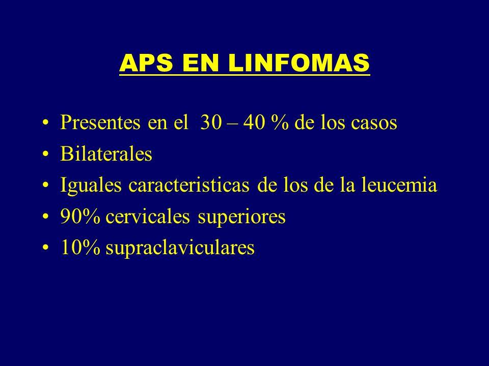 APS EN LINFOMAS Presentes en el 30 – 40 % de los casos Bilaterales Iguales caracteristicas de los de la leucemia 90% cervicales superiores 10% supracl