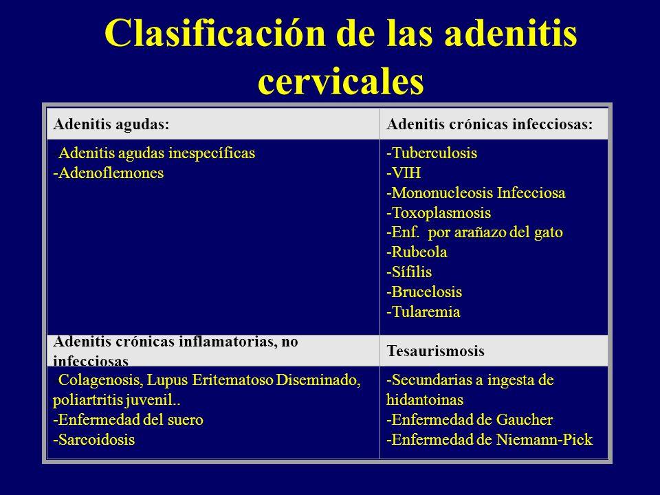 Clasificación de las adenitis cervicales Adenitis agudas:Adenitis crónicas infecciosas: -Adenitis agudas inespecíficas -Adenoflemones -Tuberculosis -V