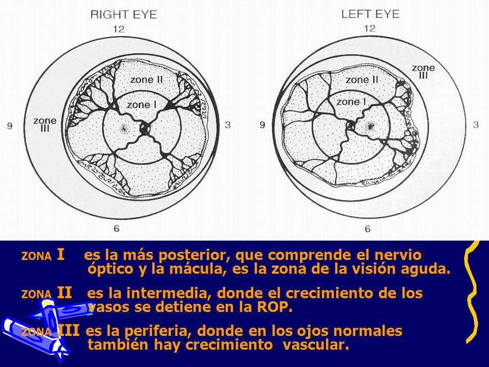 ZONA I es la más posterior, que comprende el nervio óptico y la mácula, es la zona de la visión aguda. ZONA II es la intermedia, donde el crecimiento