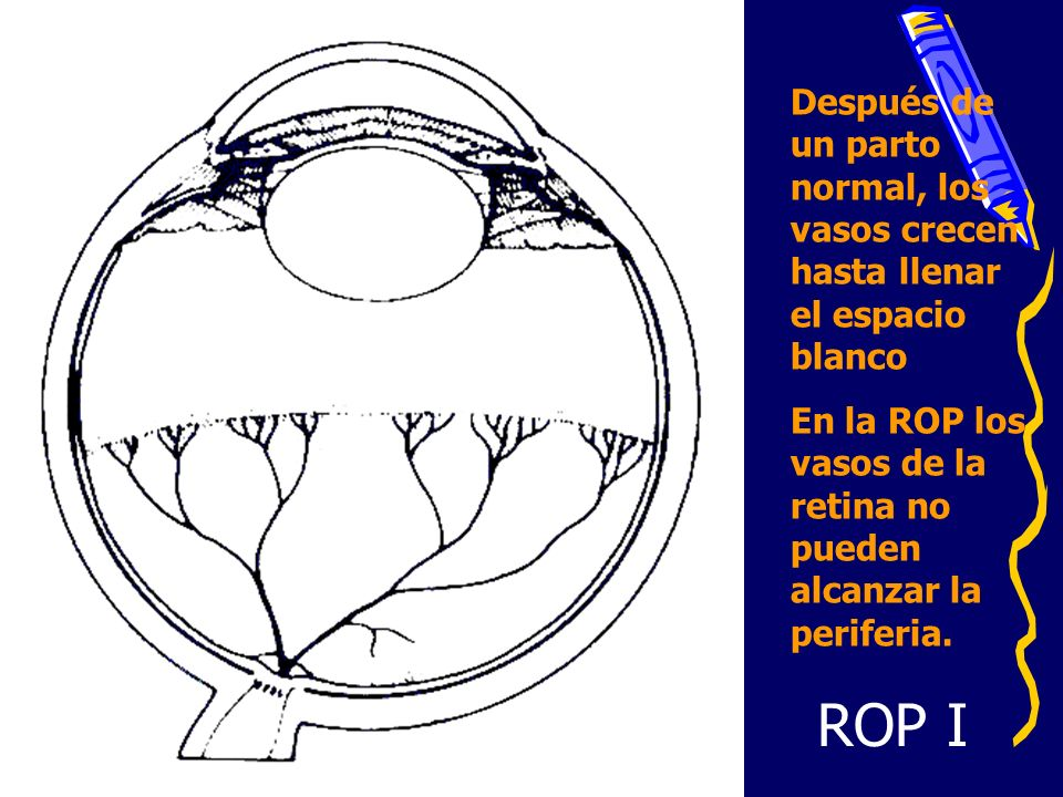 HNERM ROP GRAVE PESO (g)TOTALSOBREV.# ROP GRAVE % ROP GRAVE TOTAL 1000 a 1500 110901011 1250-1500655611.8 1000-12494534926 TOTAL < 100045231357 900 – 99916120975 800 – 89908060117 700 – 79905030266 600 – 69909020150 500 – 5990700-- < 50000 -