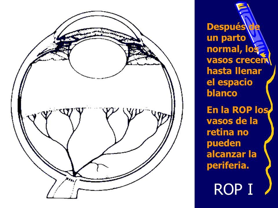 Después de un parto normal, los vasos crecen hasta llenar el espacio blanco En la ROP los vasos de la retina no pueden alcanzar la periferia. ROP I