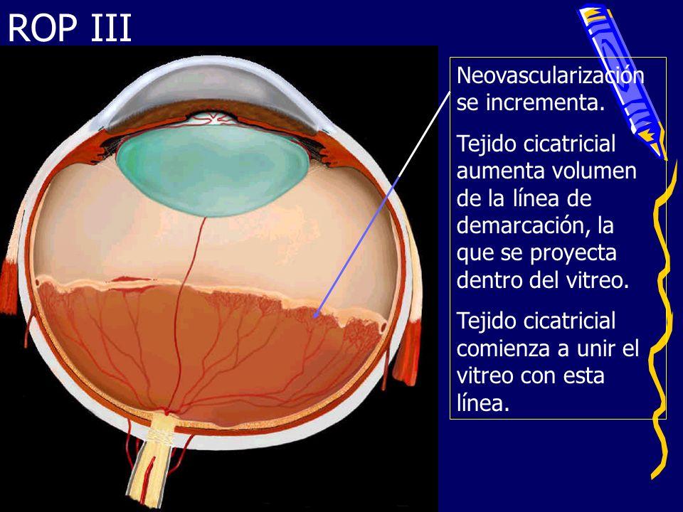 ROP III Neovascularización se incrementa. Tejido cicatricial aumenta volumen de la línea de demarcación, la que se proyecta dentro del vitreo. Tejido