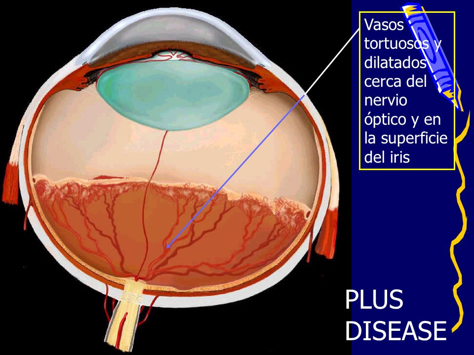 PLUS DISEASE Vasos tortuosos y dilatados cerca del nervio óptico y en la superficie del iris