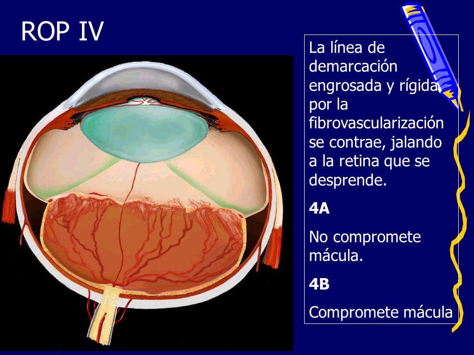 ROP IV La línea de demarcación engrosada y rígida por la fibrovascularización se contrae, jalando a la retina que se desprende. 4A No compromete mácul