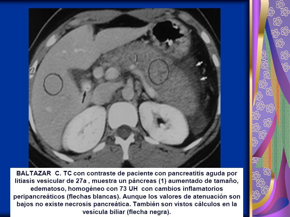BALTAZAR C. TC con contraste de paciente con pancreatitis aguda por litiasis vesicular de 27a, muestra un páncreas (1) aumentado de tamaño, edematoso,