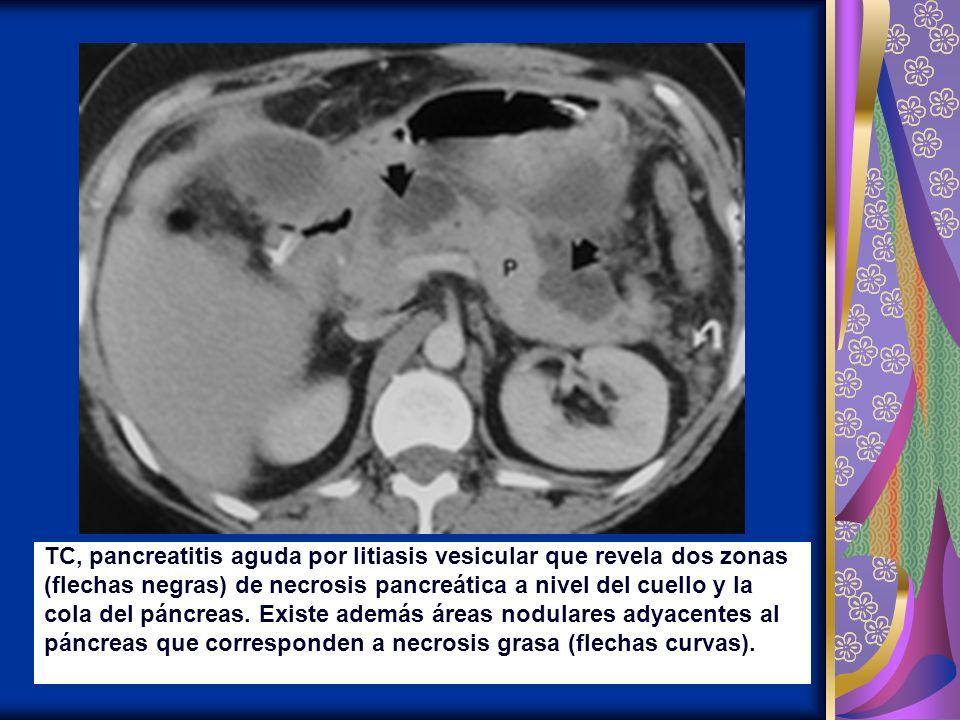 TC, pancreatitis aguda por litiasis vesicular que revela dos zonas (flechas negras) de necrosis pancreática a nivel del cuello y la cola del páncreas.