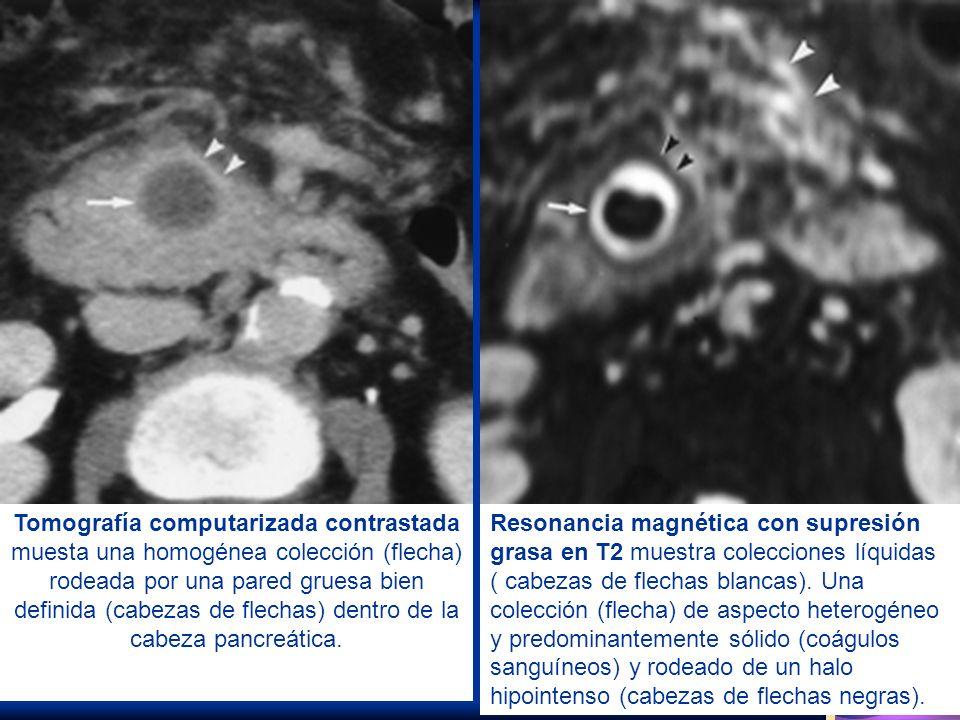 Tomografía computarizada contrastada muesta una homogénea colección (flecha) rodeada por una pared gruesa bien definida (cabezas de flechas) dentro de