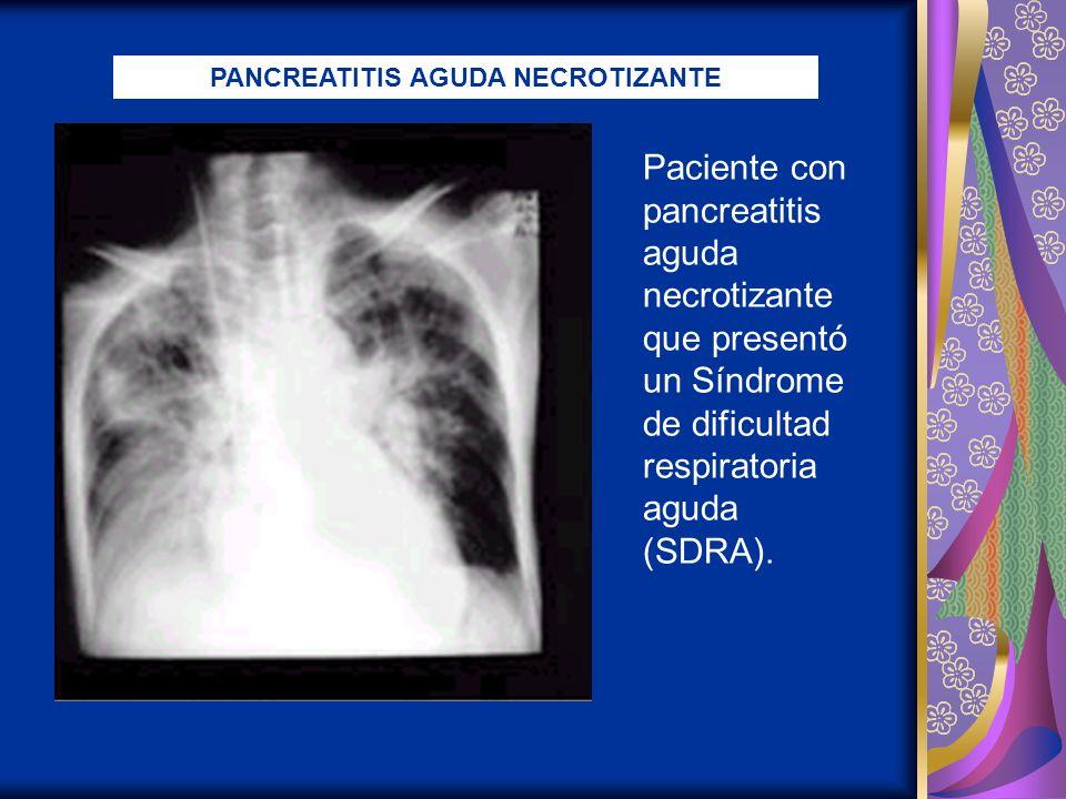 Paciente con pancreatitis aguda necrotizante que presentó un Síndrome de dificultad respiratoria aguda (SDRA). PANCREATITIS AGUDA NECROTIZANTE