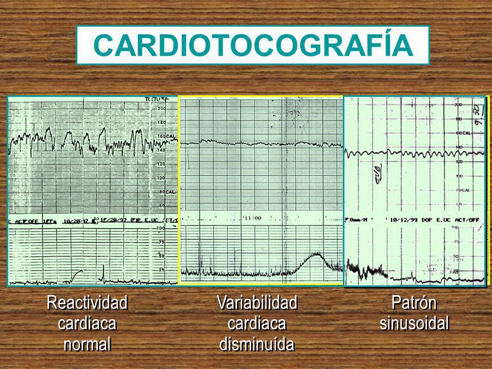 CARDIOTOCOGRAFÍA Reactividad cardiaca normal Variabilidad cardiaca disminuída Patrón sinusoidal Patrón sinusoidal