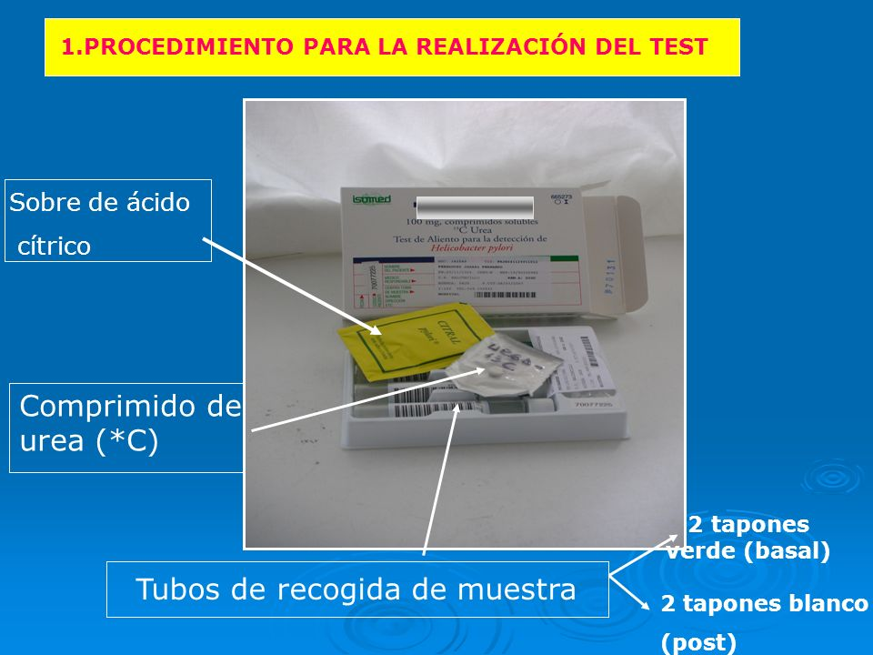 200ml AGUA + AC.CÍTRICO 10 MIN 2.Muestra Posterior 125 ml AGUA + UREA (Comprimido) 1.Muestra Basal 30 MIN + 2 tubos