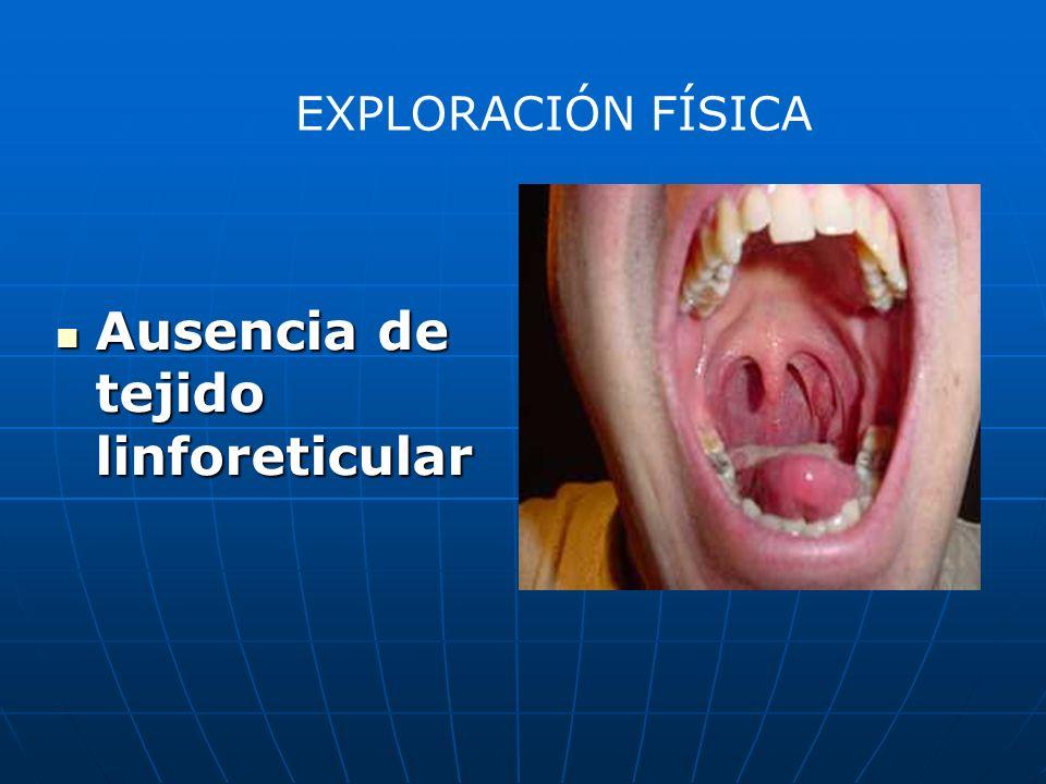 Ausencia de tejido linforeticular Ausencia de tejido linforeticular EXPLORACIÓN FÍSICA