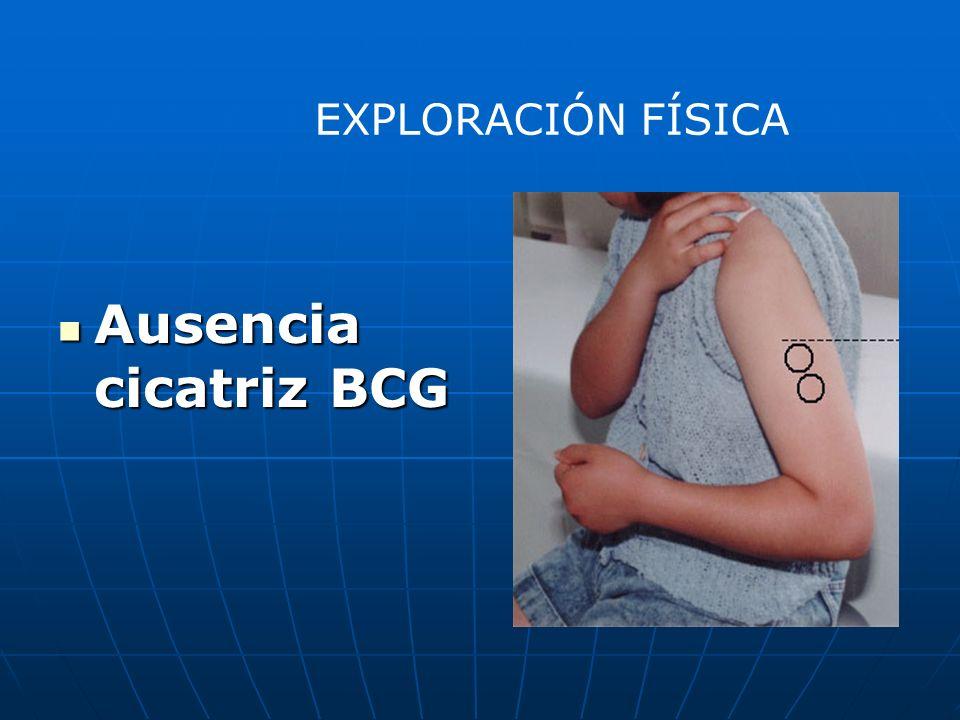 Ausencia cicatriz BCG Ausencia cicatriz BCG EXPLORACIÓN FÍSICA