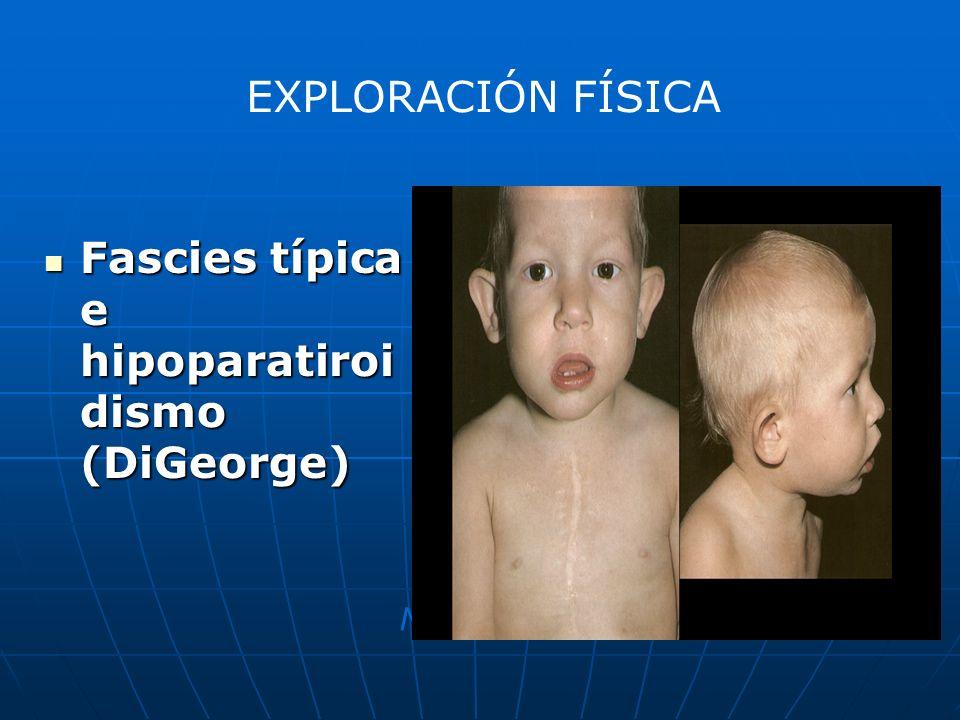 Fascies típica e hipoparatiroi dismo (DiGeorge) Fascies típica e hipoparatiroi dismo (DiGeorge) Nature Medicine 9, 173 - 182 (2003) EXPLORACIÓN FÍSICA