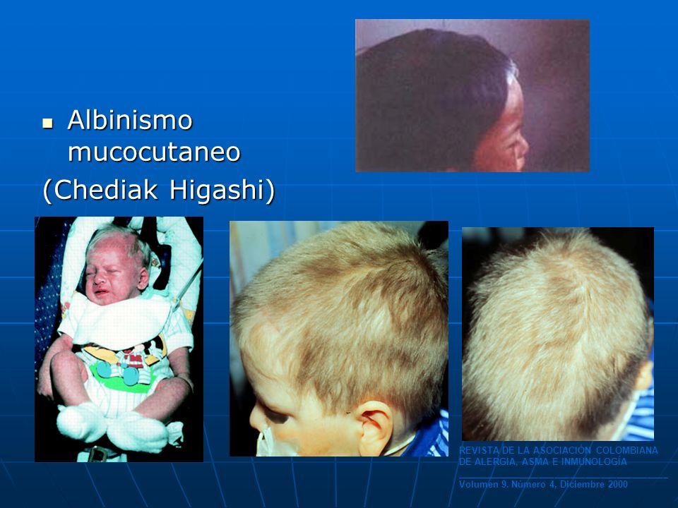 Albinismo mucocutaneo Albinismo mucocutaneo (Chediak Higashi) REVISTA DE LA ASOCIACIÓN COLOMBIANA DE ALERGIA, ASMA E INMUNOLOGÍA _____________________