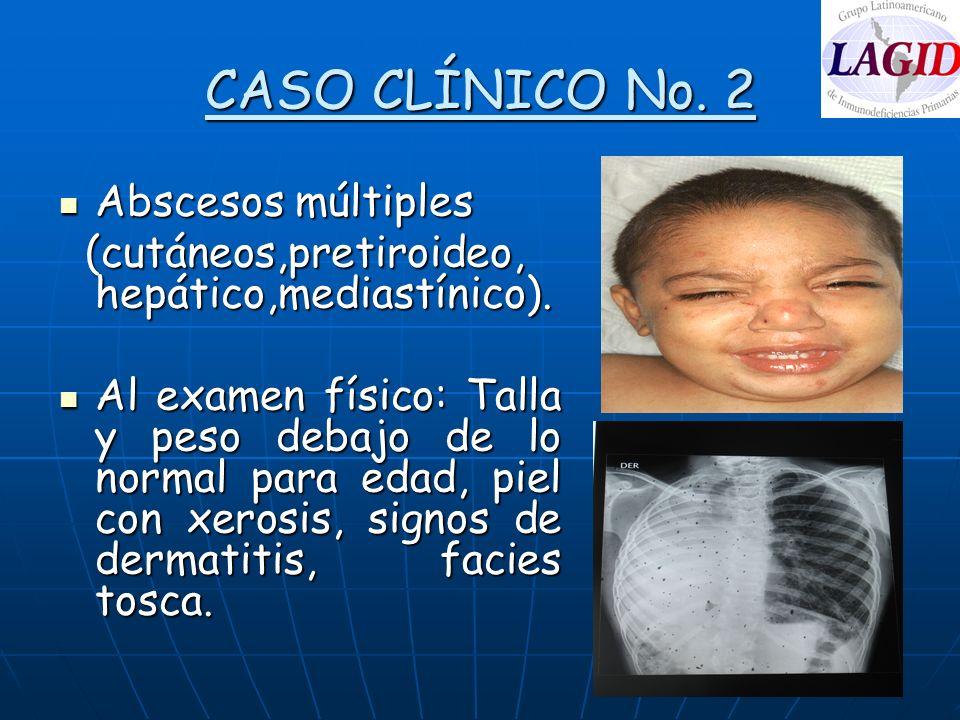 CASO CLÍNICO No. 2 Abscesos múltiples Abscesos múltiples (cutáneos,pretiroideo, hepático,mediastínico). (cutáneos,pretiroideo, hepático,mediastínico).