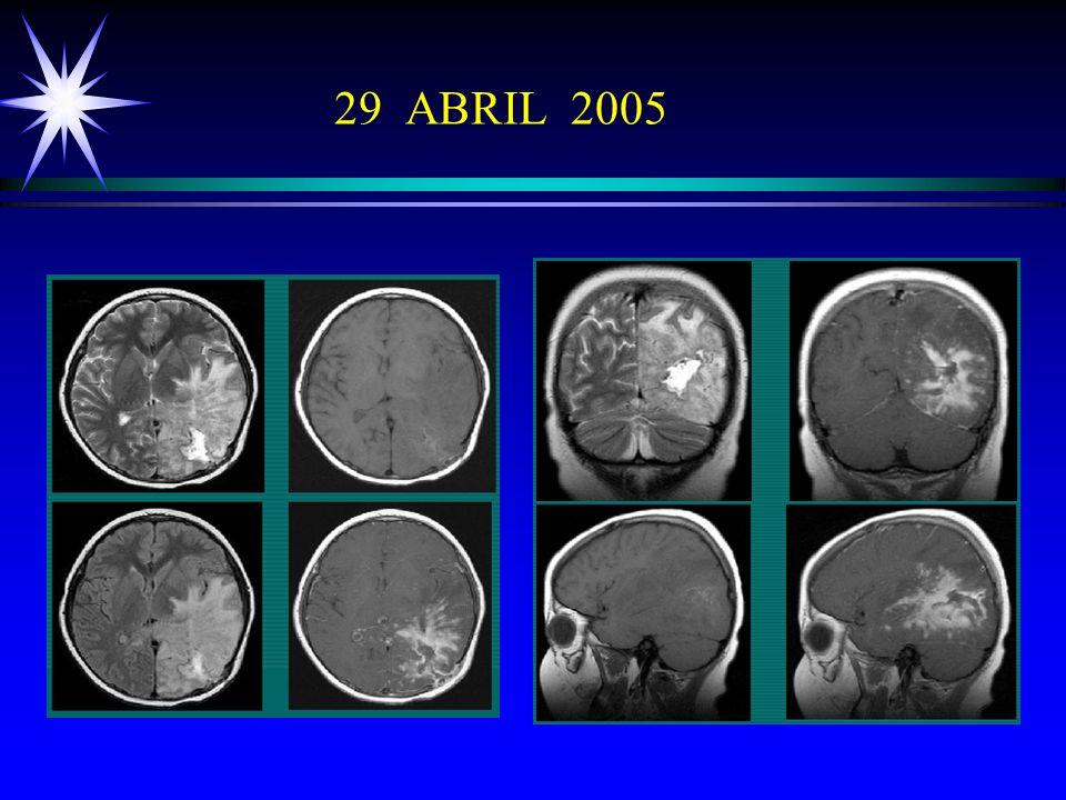 29 ABRIL 2005