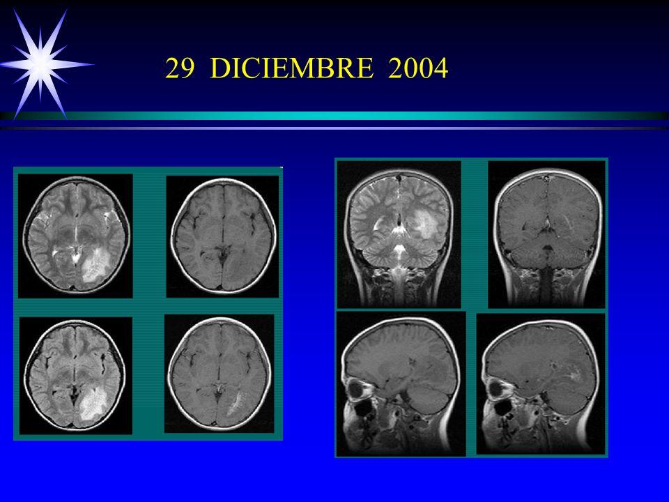 29 DICIEMBRE 2004