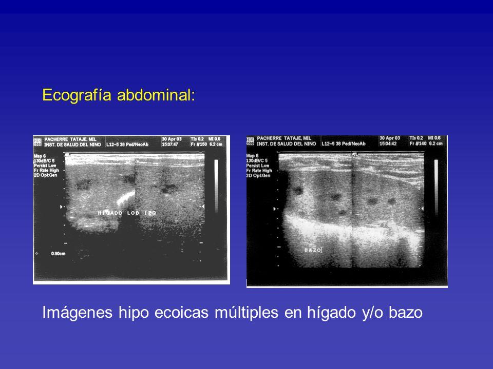 Inmunocomprometidos: Angiomatosis bacilar Peliosis bacilar Paciente 1a 2 meses con infección VIH SIDA