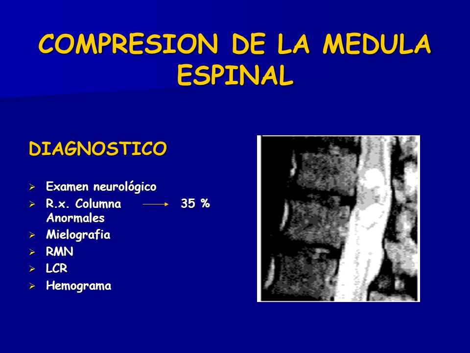 COMPRESION DE LA MEDULA ESPINAL DIAGNOSTICO Examen neurológico Examen neurológico R.x. Columna 35 % Anormales R.x. Columna 35 % Anormales Mielografia