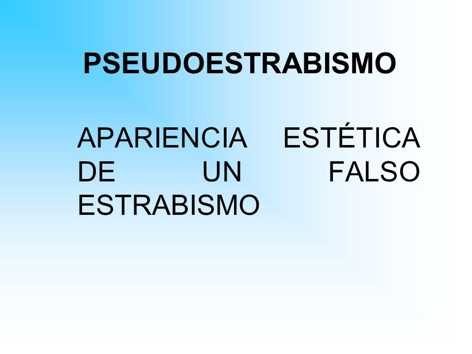 PSEUDOESTRABISMO APARIENCIA ESTÉTICA DE UN FALSO ESTRABISMO