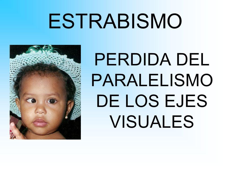 ESTRABISMO PERDIDA DEL PARALELISMO DE LOS EJES VISUALES