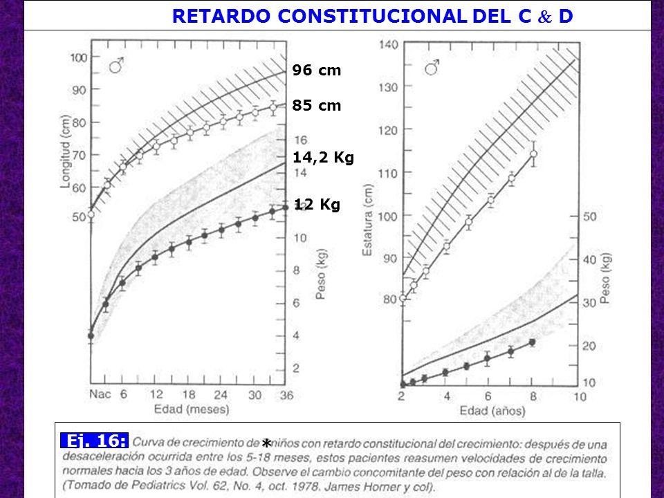 61 Ej. 16: * 96 cm 85 cm 14,2 Kg 12 Kg RETARDO CONSTITUCIONAL DEL C D
