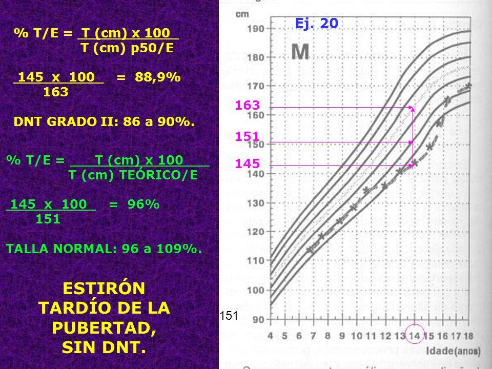69 ESTIRÓN TARDÍO DE LA PUBERTAD, SIN DNT. Ej. 20 % T/E = T (cm) x 100_ T (cm) p50/E 145 x 100_ = 88,9% 163 DNT GRADO II: 86 a 90%. 163 145 151 % T/E