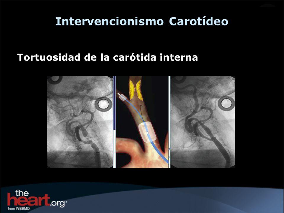 Intervencionismo Carotídeo Tortuosidad de la carótida interna