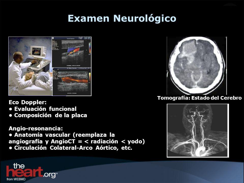 Examen Neurológico Tomografía: Estado del Cerebro Eco Doppler: Evaluación funcional Composición de la placa Angio-resonancia: Anatomía vascular (reemp