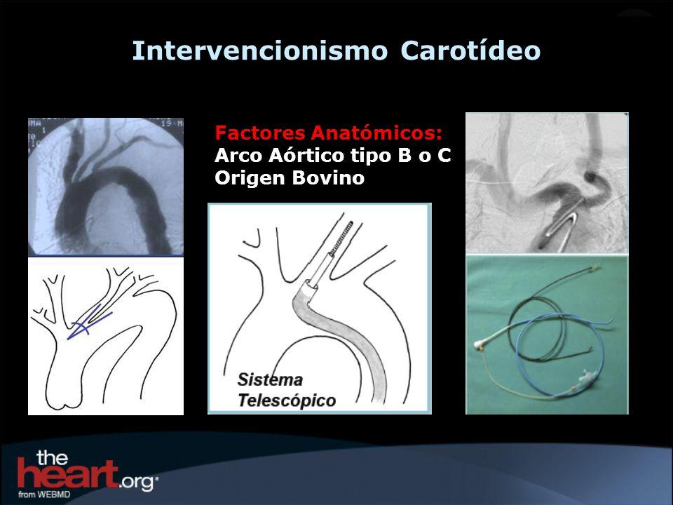 Carotid Artery Angioplasty Fundación Favaloro (Buenos Aires) – Oct.